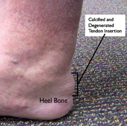 achilles tendonitis basic basketball