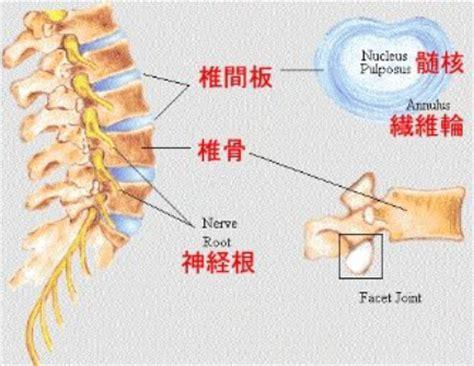 無料 椎間板とは に対する画像結果