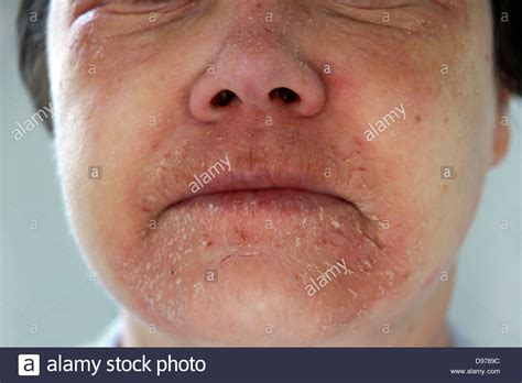 Woman Suffering With Eczema A Rash Covering Most Of The