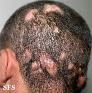 Bed Cradle Definition by Itchy Scalp Pictures Causes And Treatment Healthhype Com