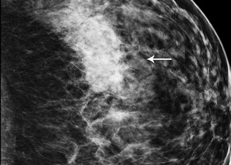 National breast mri (one breast) because medical procedure pricing varies by procedure type, insurance type, and numerous other factors, price ranges must be used to best. Image IQ: 42-year-old with Architectural Distortion on Breast Tomo | Diagnostic Imaging
