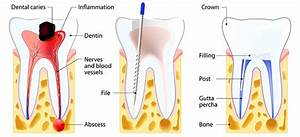 Root Canal Treatment Penrith