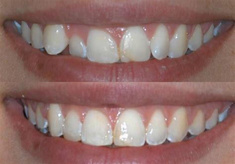 smile gallery chicagoland il family dental care