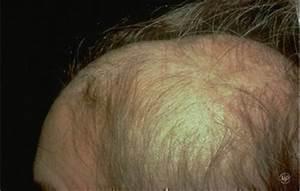 Alopecia Areata American Academy Of Dermatology
