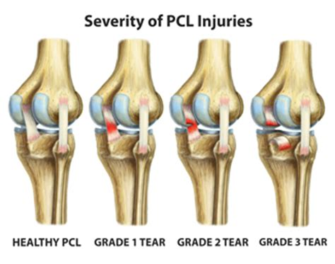 elbow injuries pcl injuries cardiofree workouts