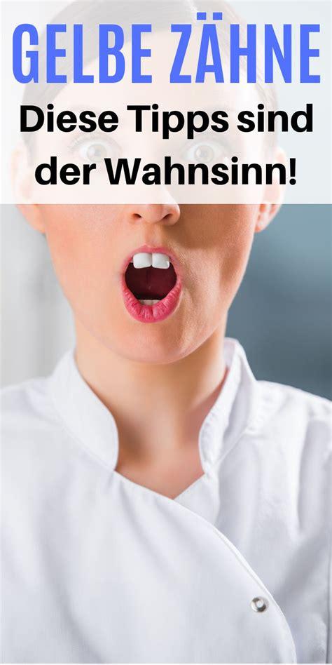 Omas Hausmittel Putzen by 5 Tipps Gegen Gelbe Z 228 Hne Endlich Ein Strahlendes