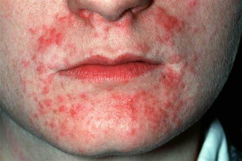 Pil schimmelinfectie