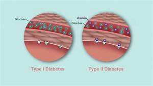What U0026 39 S The Difference Between Type 1 And Type 2 Diabetes