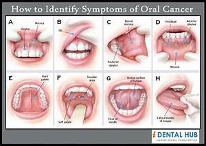 How to identify signs and symptoms of oral cancer and its ...