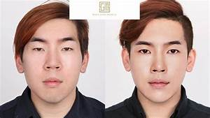 Top Korean Plastic Surgery Before  U0026 After