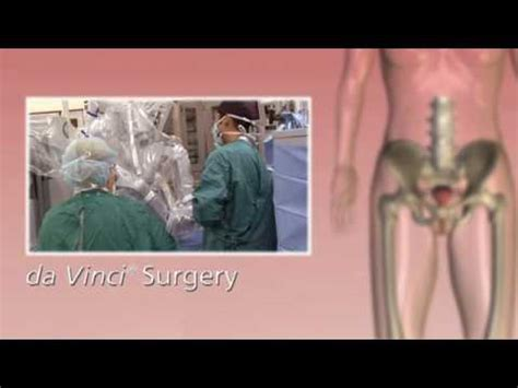 da Vinci Hysterectomy Robotic Surgery - YouTube