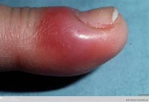 Paronychia | Primary Care Dermatology Society | UK