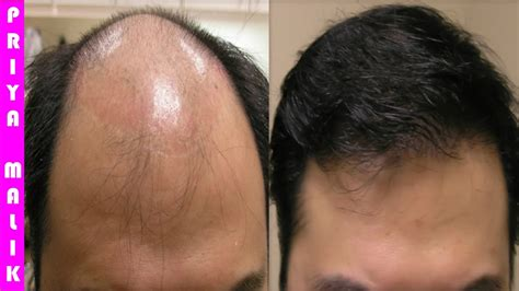Grow Long Hair, 100% Natural Hair Loss Treatment, Cure