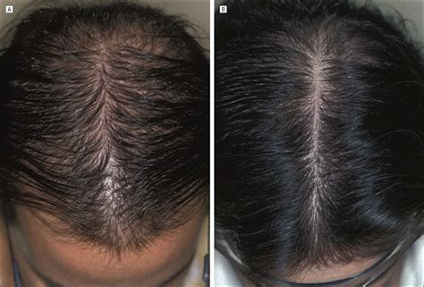 Finasteride Treatment of Female Pattern Hair Loss | JAMA