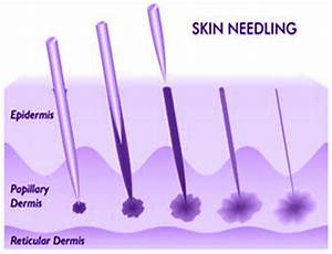 Medical Skin Needling, Dermaroller, Collagen Induction ...