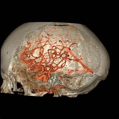Scan Ct Human Inside Gifs Brain Skull