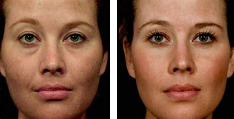 Filler under eyes, under eye filler, what are eye fillers and why