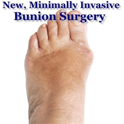 The Drs New Bunion Surgery Leaves Minimal Scarring & No. Courses Required For Medical School. Is Phoenix Online Accredited. Home Security For Renters Hosted Web Security. What Do You Need To Be A Registered Nurse. Online Web Development Tool Loan Home Rates. Lawyers In Fort Worth Tx Mover Job Description. Cypress Lake Middle School Cdl Jobs Illinois. Unity Life Insurance Company