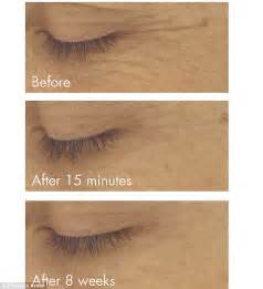 Elizabeth Arden PREVAGE Anti-aging + Intensive Repair Eye