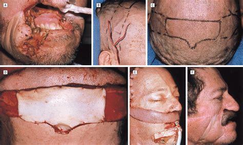 hair bearing temporoparietal fascial flap reconstruction