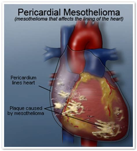 Mesothelioma Cancer - mesothelioma pictures mesothelioma cancer alliance photo