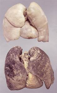 Healthy Lung Pictures