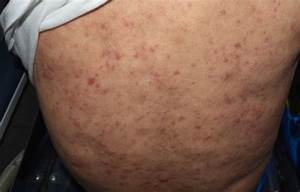A Case Of Generalised Papules