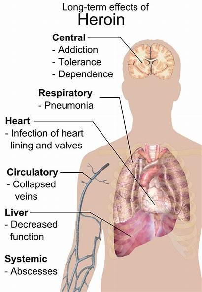 Heroin Addiction Term Effects Addicted Brain
