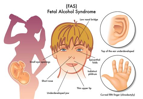 Fetal Alcohol Syndrome What I Wish Id Known Healthy