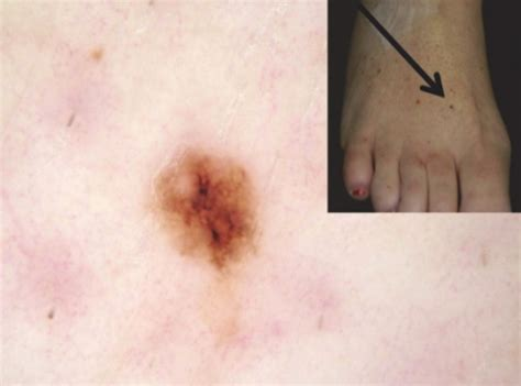 melanoma survival rate higher  stage   stage
