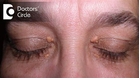 rid  skin tags  upper eyelids  eye region dr nischal  youtube