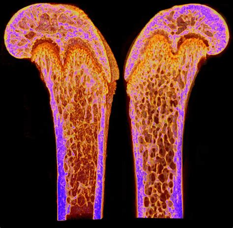 Design Lessons From Cancellous Bone