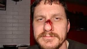 Broken Nose X Ray