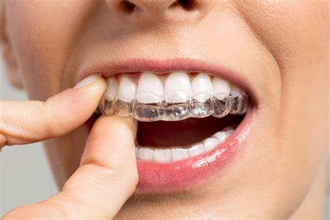 alternative types  braces andrew  skorobatckyj dds