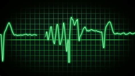 Heart Rate Monitor Animation Stock Footage Video 3703178