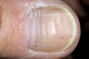 Чем в домашних условиях лечить грибок ногтей на руках