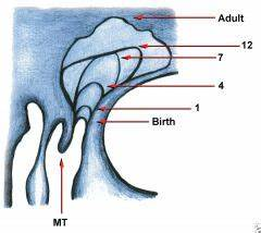 ENT - KJ Lee 10th Ed - Chapter 16 - Paranasal Sinuses ...