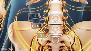 Lumbar Spinal Discs L4  L5  And S1