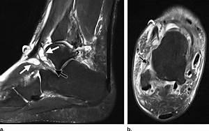 Sinus Tarsi Ganglion Mimicking Edl Tenosynovitis In A 43