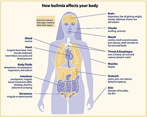 Issues Related To Eating Disorders  Wikybrewm. Stiff Neck Signs. Multilingual Signs. Pontine Signs Of Stroke. Incidence Signs. Ratio Signs. Wheel Signs. Well Designed Signs Of Stroke. Examples Signs