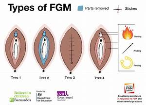 Fgm  U2013 National Fgm Centre