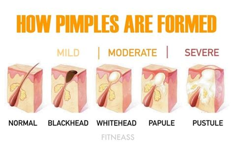 the complete guide to acne breakout and skin health fitneass
