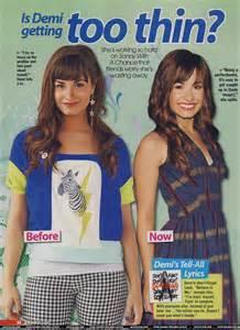 Demi Lovato Too Skinny