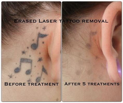 treatment erased tattoo removal las vegas