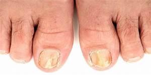 Как быстро поражает грибок ногти