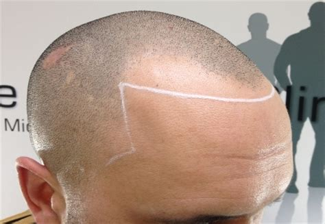 Receding Hairline - What To Do To Stop It - What Do