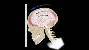 Common Brain Injuries  Coup-contracoup