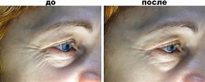 Как избавиться от морщин вокруг глаз в домашних условиях после 30