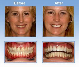 Cosmetic Dentist San Francisco   Before and After Cosmetic ...
