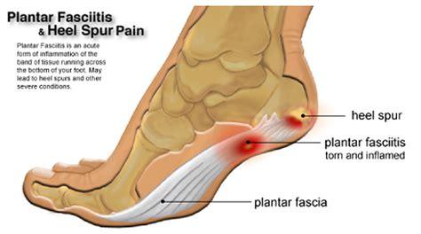 Brampton-mississauga Foot Pain Clinic